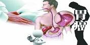 胃癌早期会出现哪些症状