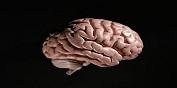 脑肿瘤是怎么引起的?
