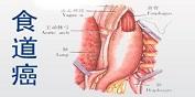 食道癌的早期症状